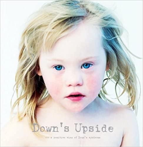 Down's Upside