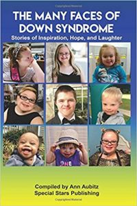 The Many Faces of Down Syndrome